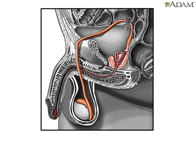 Certainly tetanus affect sperm counts