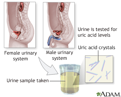 how to reduce pain of uric acid black cherry juice for gout attack how to  treat