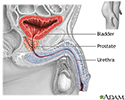 Prostatectomy - Series
