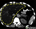 Liver fattening, CT scan