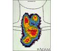 Thyroid enlargement - scintiscan