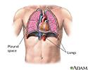 Pneumothorax - series