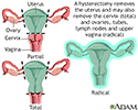 Hysterectomy