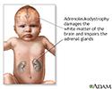 Neonatal adrenoleukodystrophy