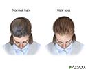 Female-pattern baldness