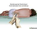 Lumbar puncture (spinal tap)