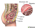 Chorionic villus sampling - series