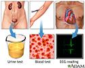 High blood pressure tests