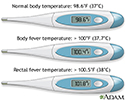 Thermometer temperature
