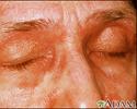 Dermatomyositis, heliotrope eyelids