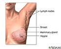 Mastectomy - series
