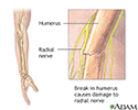 Radial nerve dysfunction