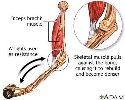 arm muscle reducer