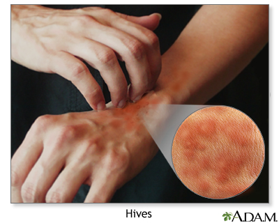 hives symptoms mayo clinic