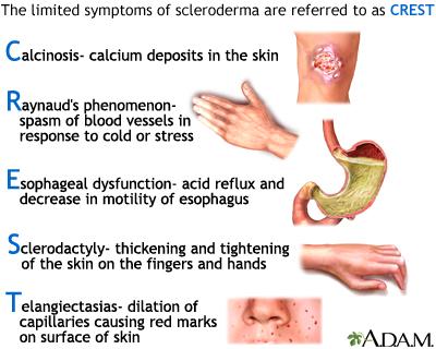 penis sclerodermic