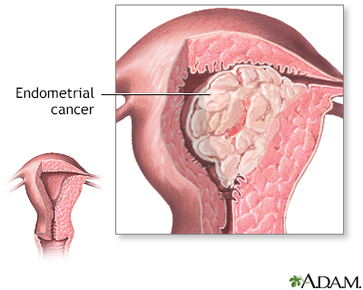 Uterine Fibroids And Hysterectomy